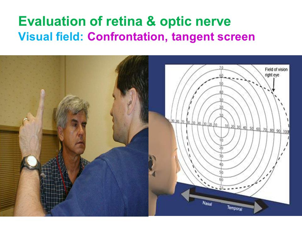 Evaluation of retina & optic nerve Visual field: Confrontation, tangent screen