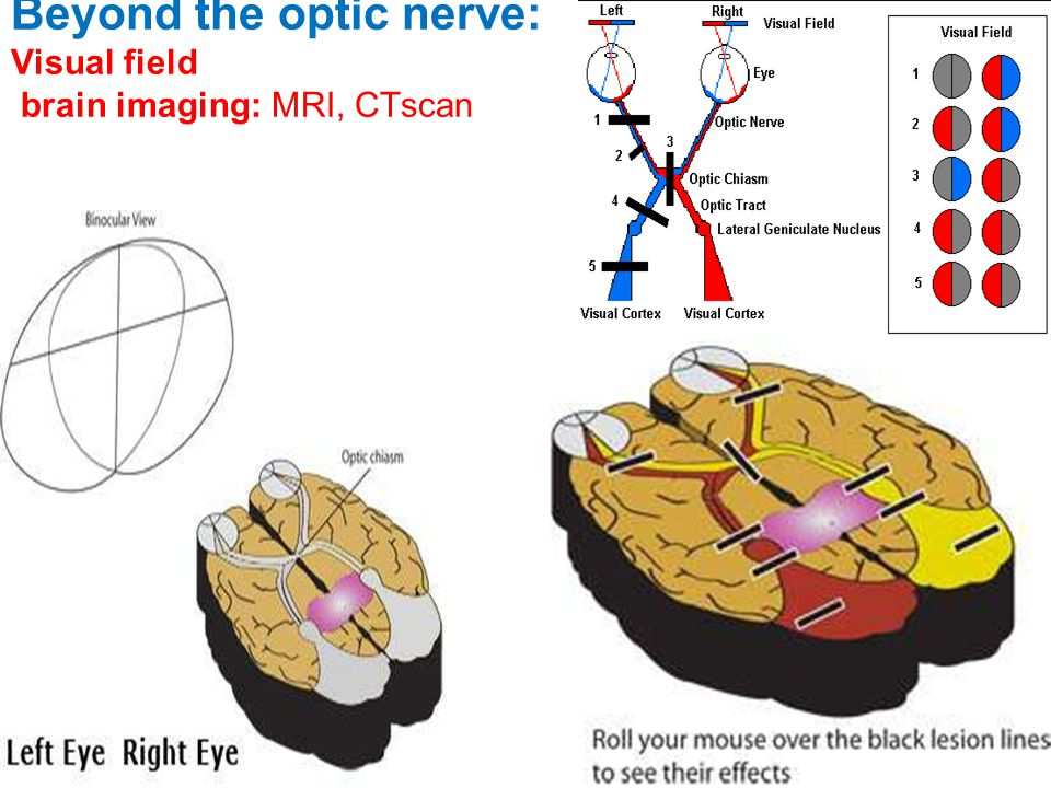 Beyond the optic nerve: Visual field brain imaging: MRI, CTscan