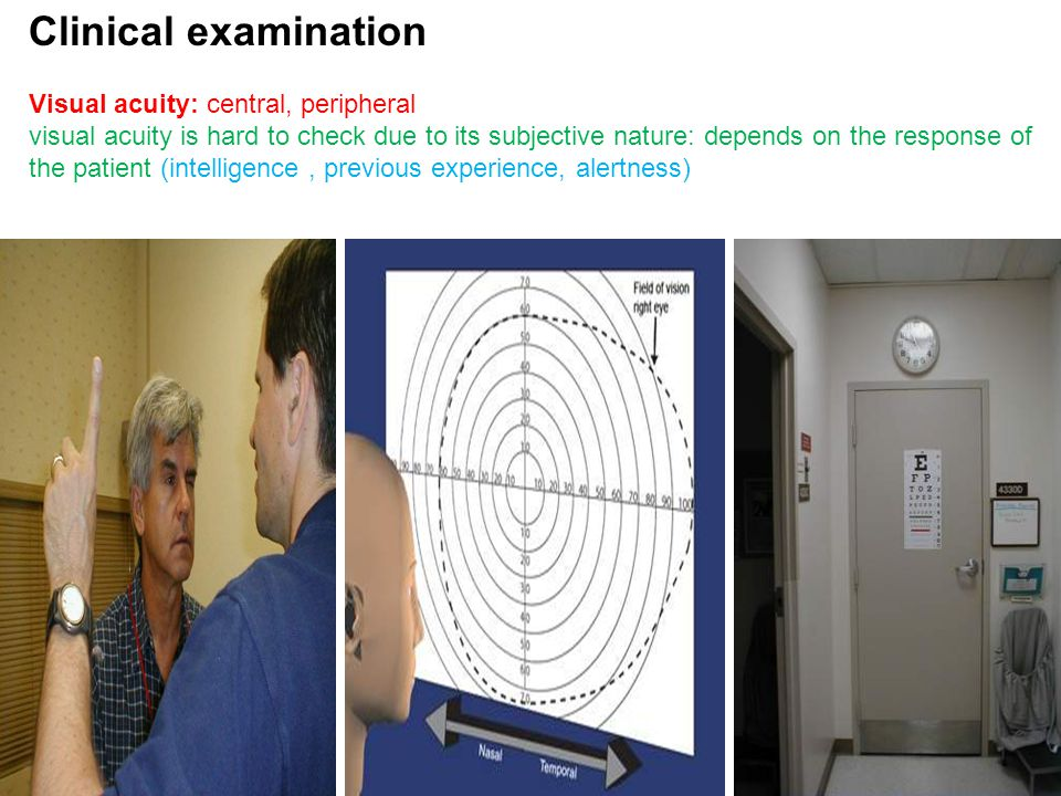 Clinical examination Visual acuity: central, peripheral visual acuity is hard to check due to its subjective nature: depends on the response of the patient (intelligence, previous experience, alertness)
