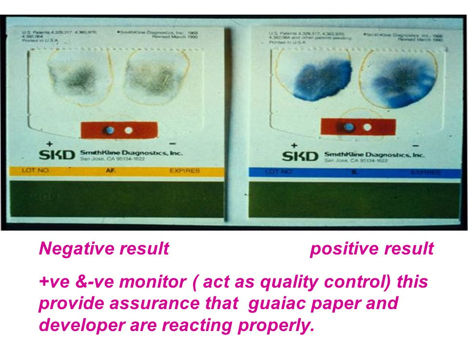 Negative result positive result +ve &-ve monitor ( act as quality control) this provide assurance that guaiac paper and developer are reacting properl