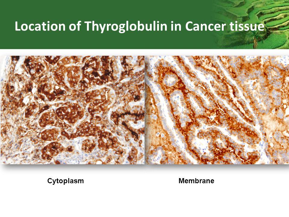 Cytoplasm Membrane Location of Thyroglobulin in Cancer tissue