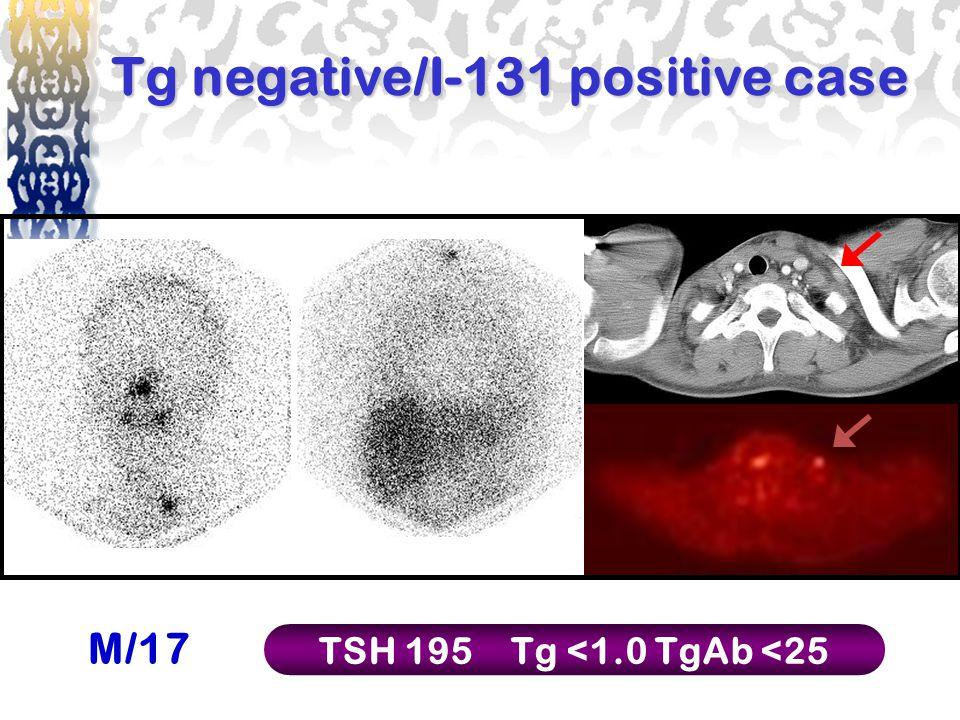 Tg negative/I-131 positive case M/17 TSH 195Tg <1.0TgAb <25