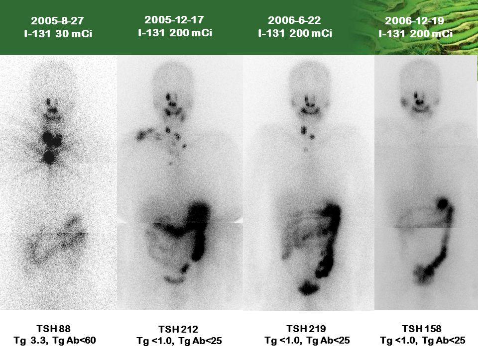 TSH 219 Tg <1.0, Tg Ab<25 2006-12-19 I-131 200 mCi 2006-6-22 I-131 200 mCi 2005-12-17 I-131 200 mCi TSH 158 Tg <1.0, Tg Ab<25 TSH 212 Tg <1.0, Tg Ab<2