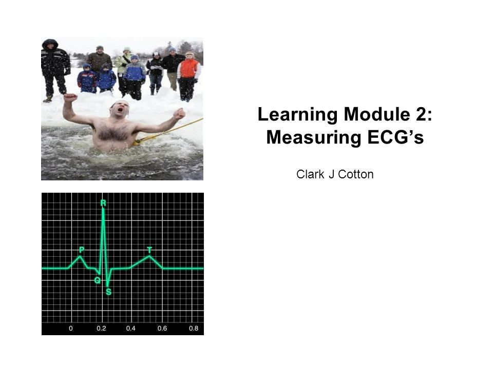 Learning Module 2: Measuring ECGs Clark J Cotton