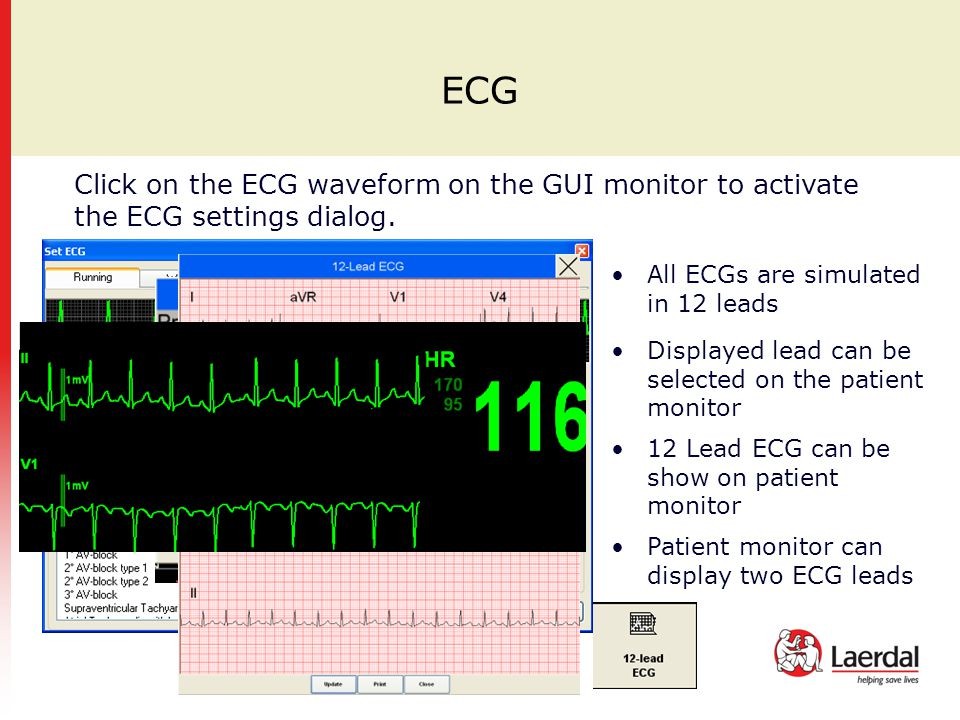 ECG Click on the ECG waveform on the GUI monitor to activate the ECG settings dialog. All ECGs are simulated in 12 leads Displayed lead can be selecte