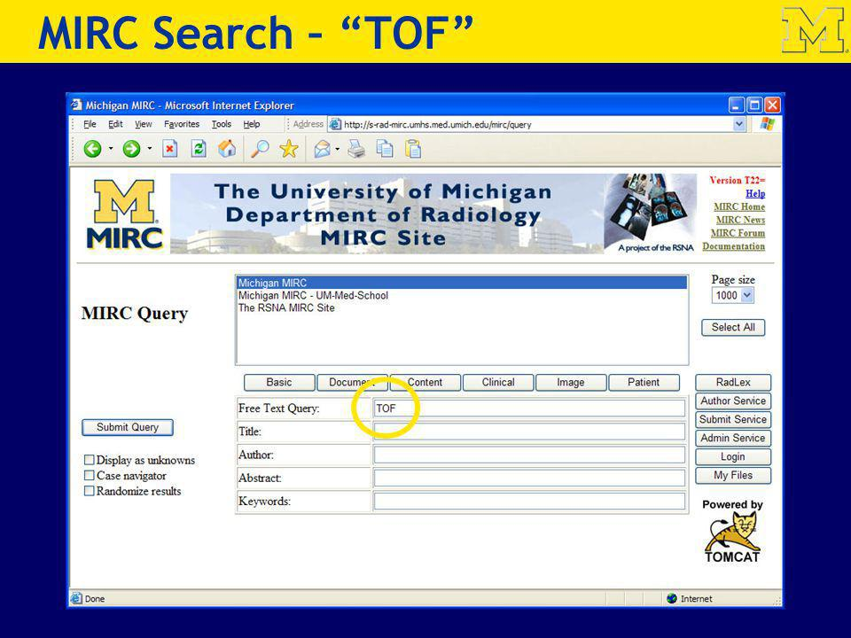 MIRC Search – TOF