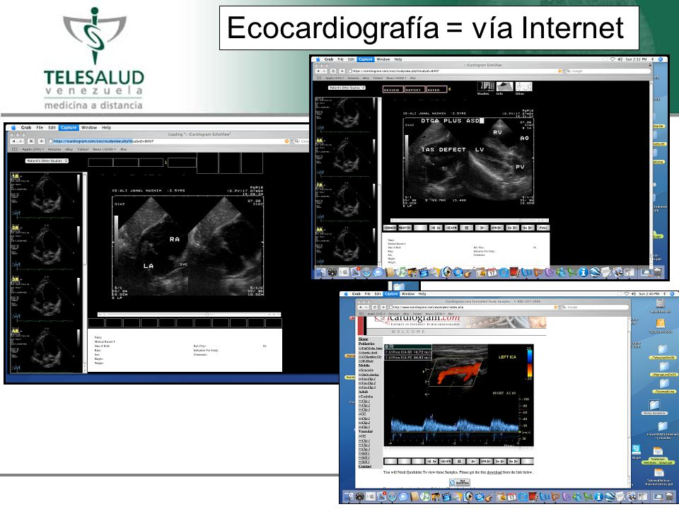 Ecocardiografía = vía Internet