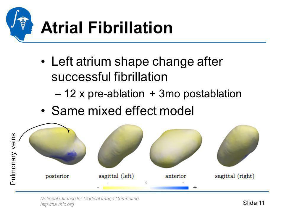 National Alliance for Medical Image Computing http://na-mic.org Slide 11 Atrial Fibrillation Left atrium shape change after successful fibrillation –1