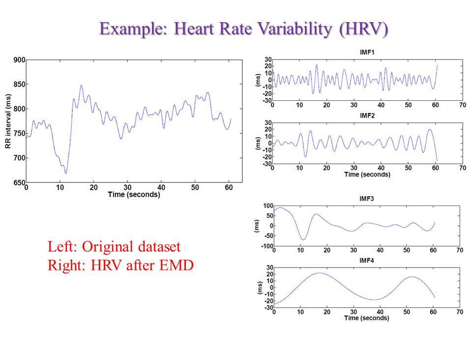 Left: Original dataset Right: HRV after EMD Example: Heart Rate Variability (HRV)