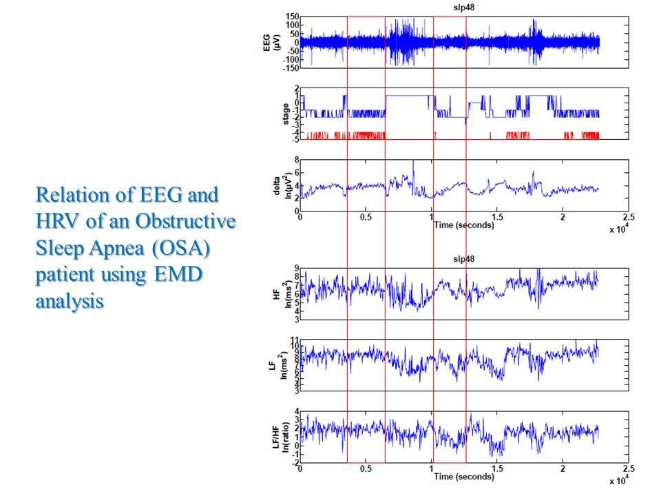 Relation of EEG and HRV of an Obstructive Sleep Apnea (OSA) patient using EMD analysis