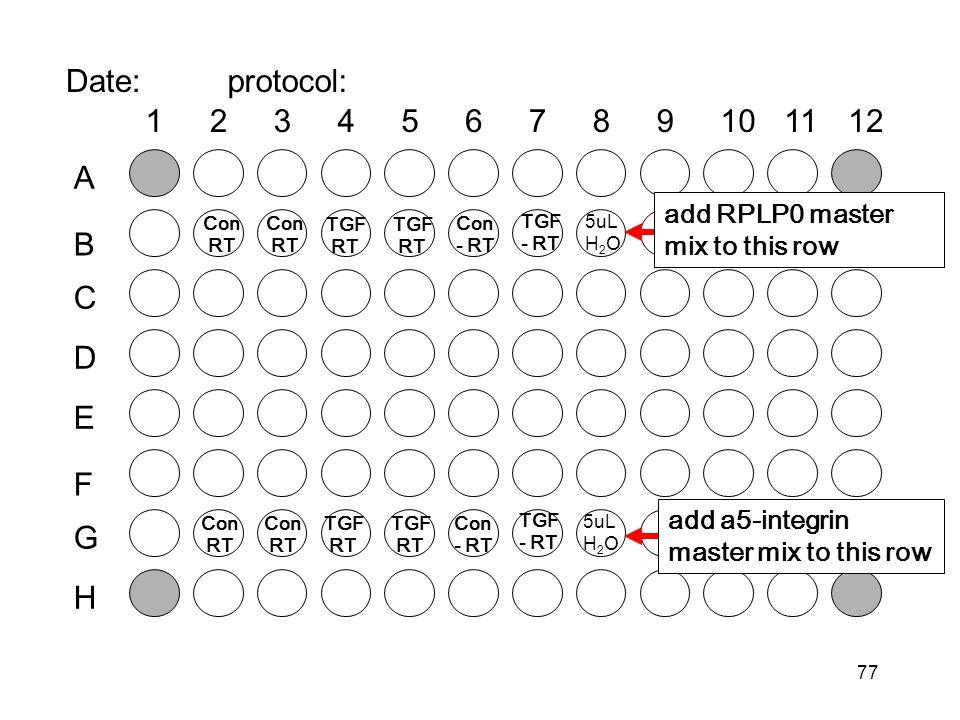 77 Date:protocol: Con RT 5uL H 2 O add RPLP0 master mix to this row add a5-integrin master mix to this row Con RT TGF RT Con - RT TGF RT TGF - RT Con RT 5uL H 2 O Con RT TGF RT Con - RT TGF RT TGF - RT