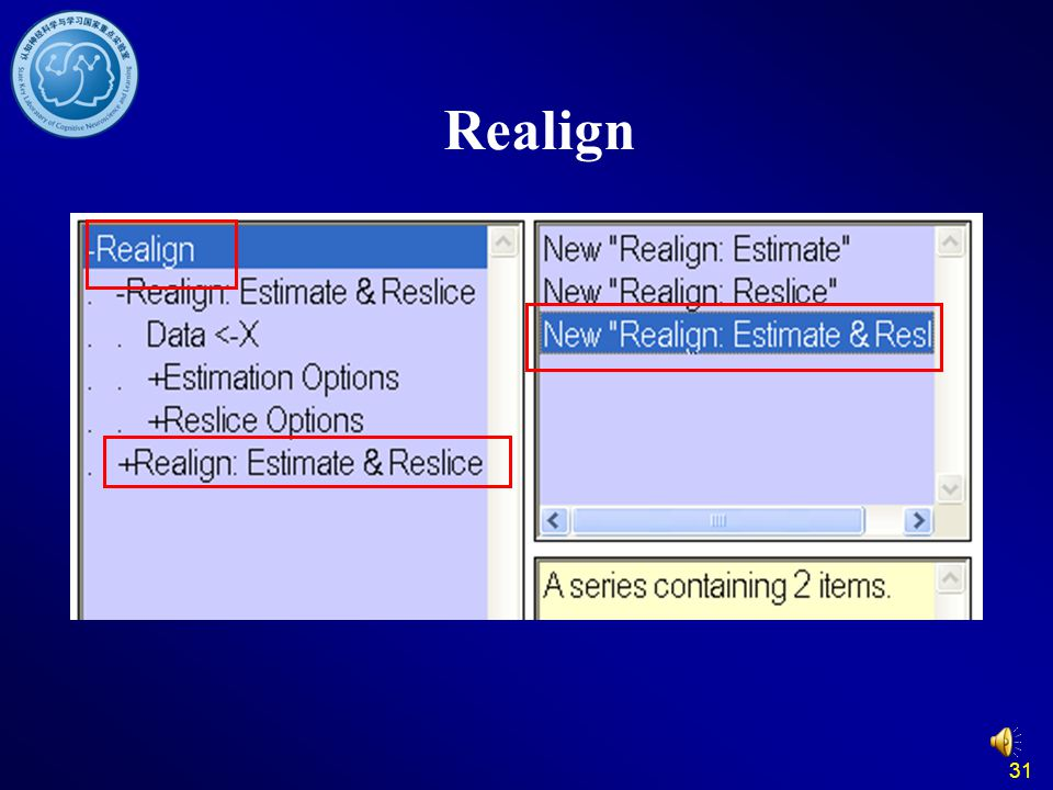 31 Realign