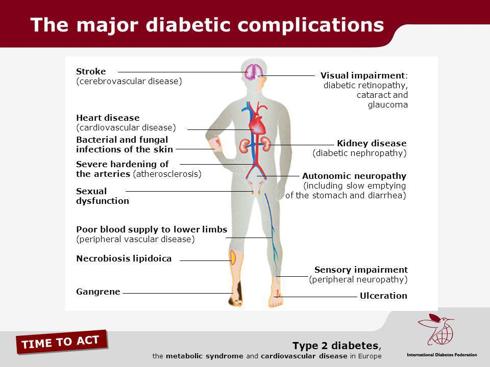 TIME TO ACT Type 2 diabetes, the metabolic syndrome and cardiovascular disease in Europe Visual impairment: diabetic retinopathy, cataract and glaucom