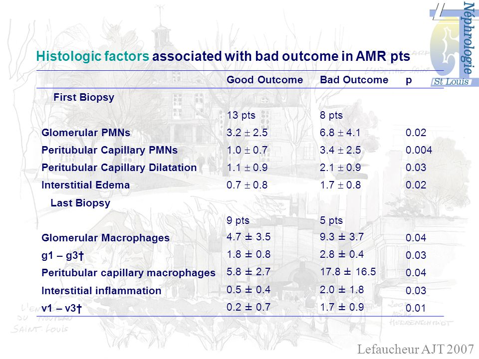 Histologic factors associated with bad outcome in AMR pts Good OutcomeBad Outcomep First Biopsy 13 pts8 pts Glomerular PMNs 3.2 2.56.8 4.1 0.02 Peritubular Capillary PMNs 1.0 0.73.4 2.5 0.004 Peritubular Capillary Dilatation 1.1 0.92.1 0.9 0.03 Interstitial Edema 0.7 0.81.7 0.8 0.02 Last Biopsy 9 pts5 pts Glomerular Macrophages4.7 ± 3.59.3 ± 3.70.04 g1 – g31.8 ± 0.82.8 ± 0.40.03 Peritubular capillary macrophages5.8 ± 2.717.8 ± 16.50.04 Interstitial inflammation0.5 ± 0.42.0 ± 1.80.03 v1 – v30.2 ± 0.71.7 ± 0.90.01 Lefaucheur AJT 2007