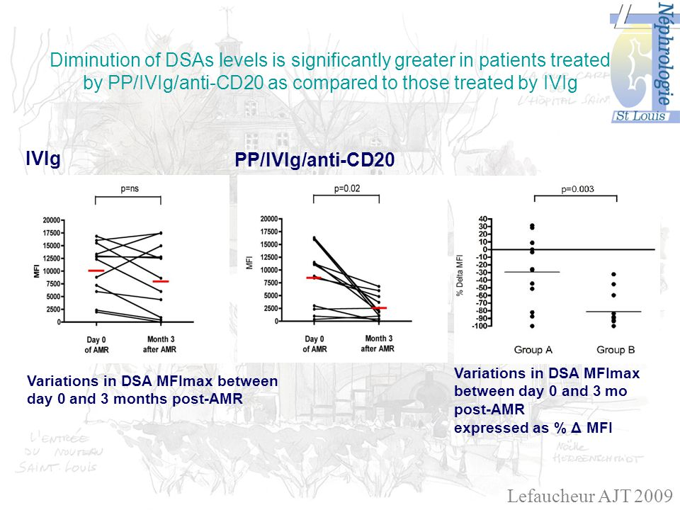 IVIg PP/IVIg/anti-CD20 Variations in DSA MFImax between day 0 and 3 months post-AMR Variations in DSA MFImax between day 0 and 3 mo post-AMR expressed as % Δ MFI Diminution of DSAs levels is significantly greater in patients treated by PP/IVIg/anti-CD20 as compared to those treated by IVIg Lefaucheur AJT 2009