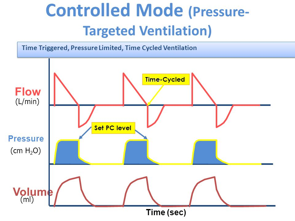 Controlled Mode (Pressure- Targeted Ventilation) Pressure Flow Volume (L/min) (cm H 2 O) (ml) Time (sec) Time- Time-CycledSet PC level Time Triggered, Pressure Limited, Time Cycled Ventilation
