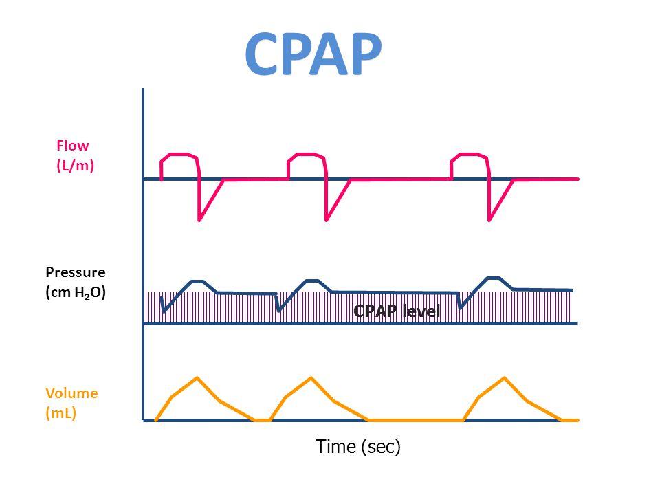 CPAP Time (sec) CPAP level Flow (L/m) Pressure (cm H 2 O) Volume (mL)