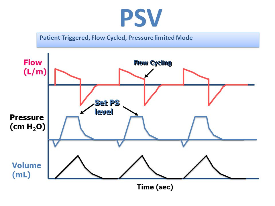 PSV Time (sec) Flow (L/m) Pressure (cm H 2 O) Volume (mL) Flow Cycling Set PS level Patient Triggered, Flow Cycled, Pressure limited Mode