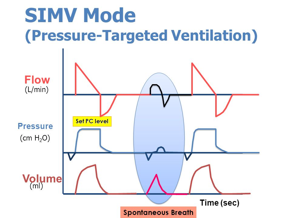 Pressure Flow Volume (L/min) (cm H 2 O) (ml) Set PC level Time (sec) SIMV Mode (Pressure-Targeted Ventilation) Spontaneous Breath