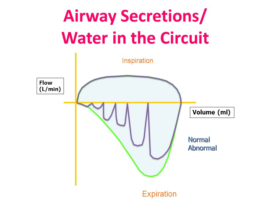 Airway Secretions/ Water in the Circuit Inspiration Expiration Volume (ml) Flow (L/min) NormalAbnormal
