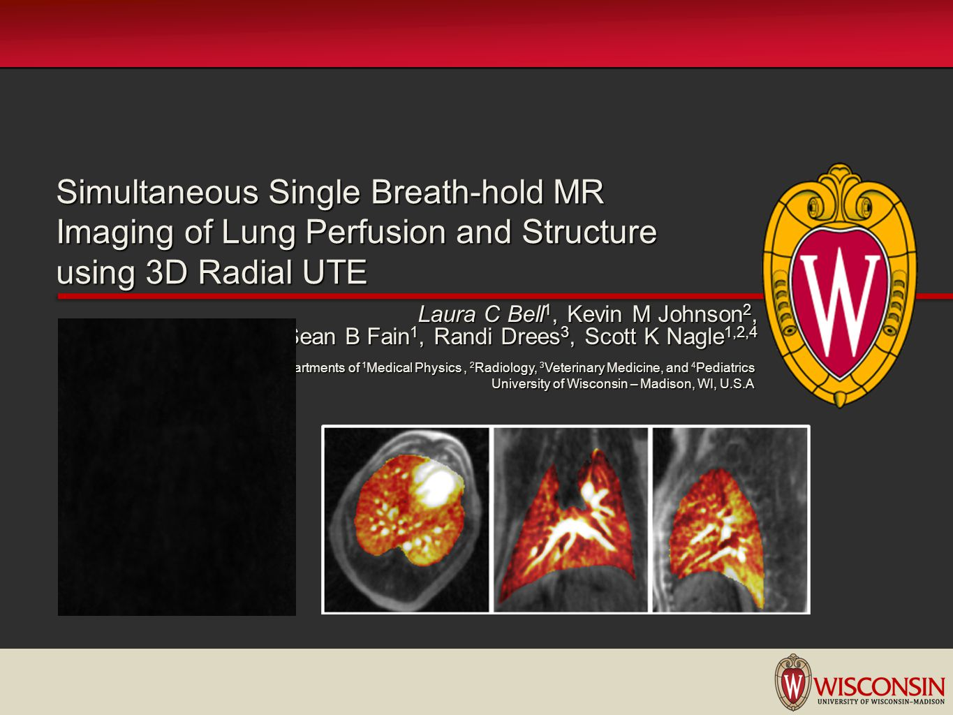 Simultaneous Single Breath-hold MR Imaging of Lung Perfusion and Structure using 3D Radial UTE Laura C Bell 1, Kevin M Johnson 2, Sean B Fain 1, Randi