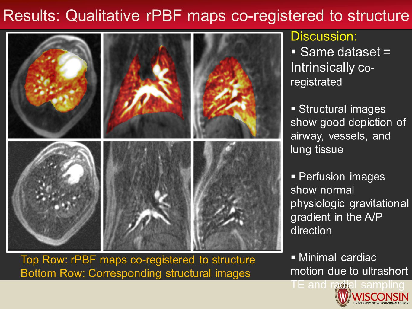 Results: Qualitative rPBF maps co-registered to structure Discussion: Same dataset = Intrinsically c o- registrated Structural images show good depict