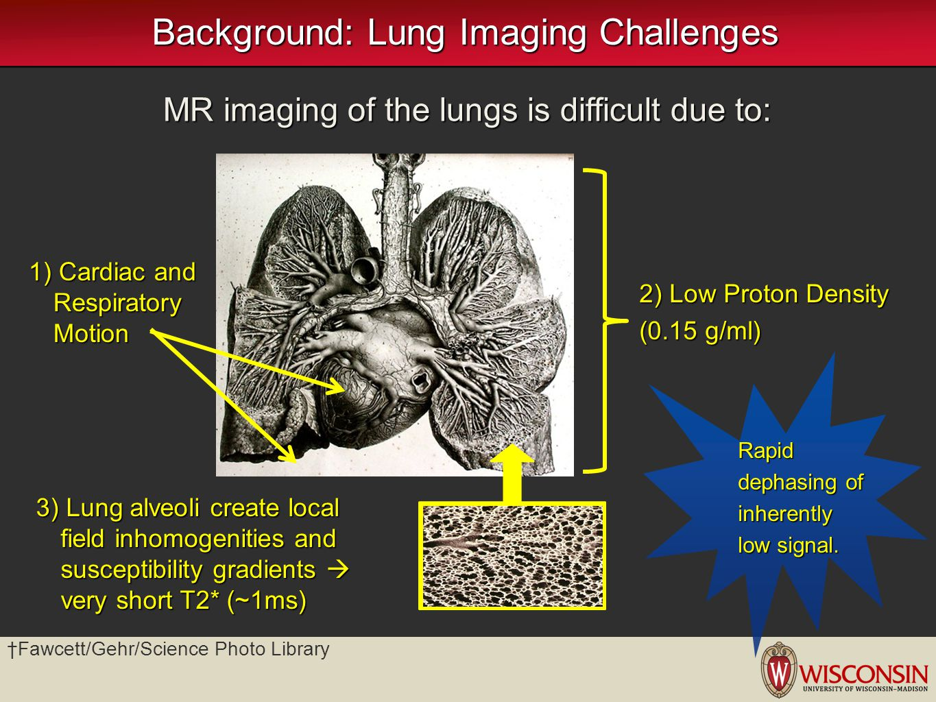 Background: Lung Imaging Challenges MR imaging of the lungs is difficult due to: 1) Cardiac and Respiratory Motion 2) Low Proton Density (0.15 g/ml) 3