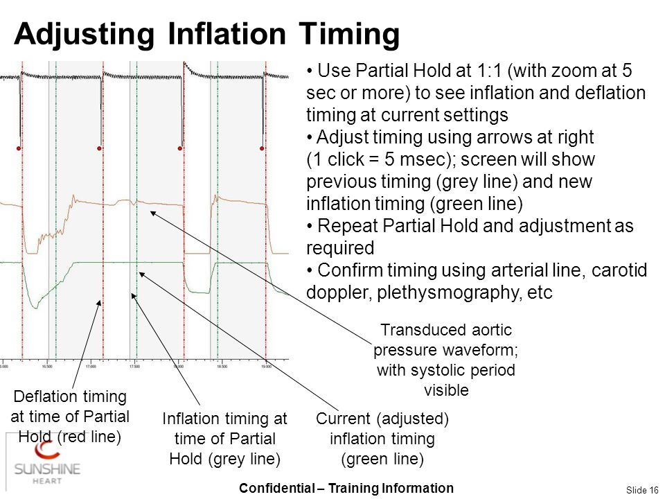 Confidential – Training Information Slide 16 Adjusting Inflation Timing Transduced aortic pressure waveform; with systolic period visible Use Partial