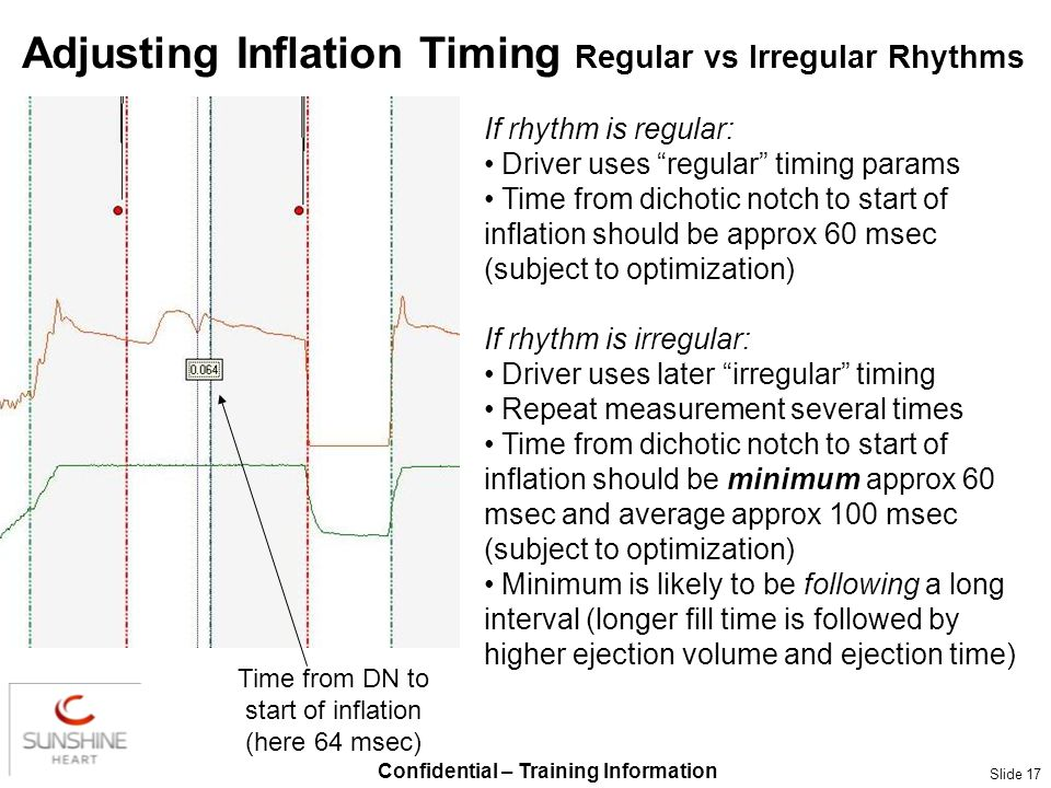 Confidential – Training Information Slide 17 Adjusting Inflation Timing Regular vs Irregular Rhythms If rhythm is regular: Driver uses regular timing
