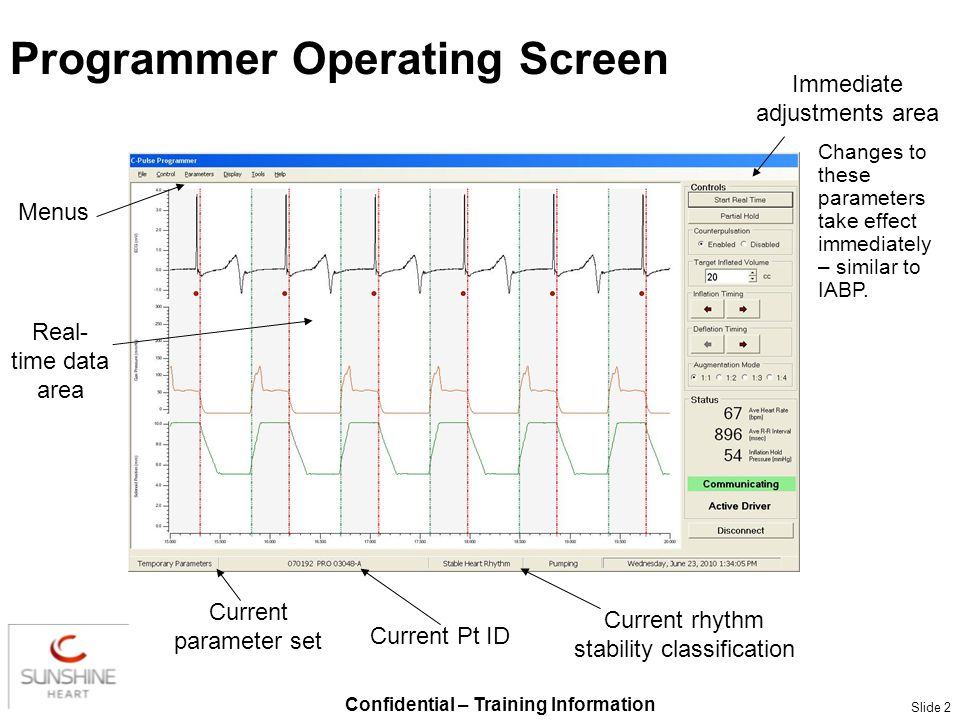 Confidential – Training Information Slide 2 Programmer Operating Screen Real- time data area Immediate adjustments area Menus Current Pt ID Current rh
