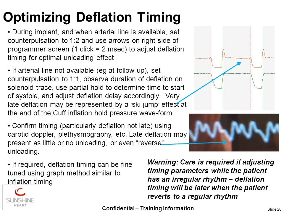 Confidential – Training Information Slide 20 Optimizing Deflation Timing During implant, and when arterial line is available, set counterpulsation to