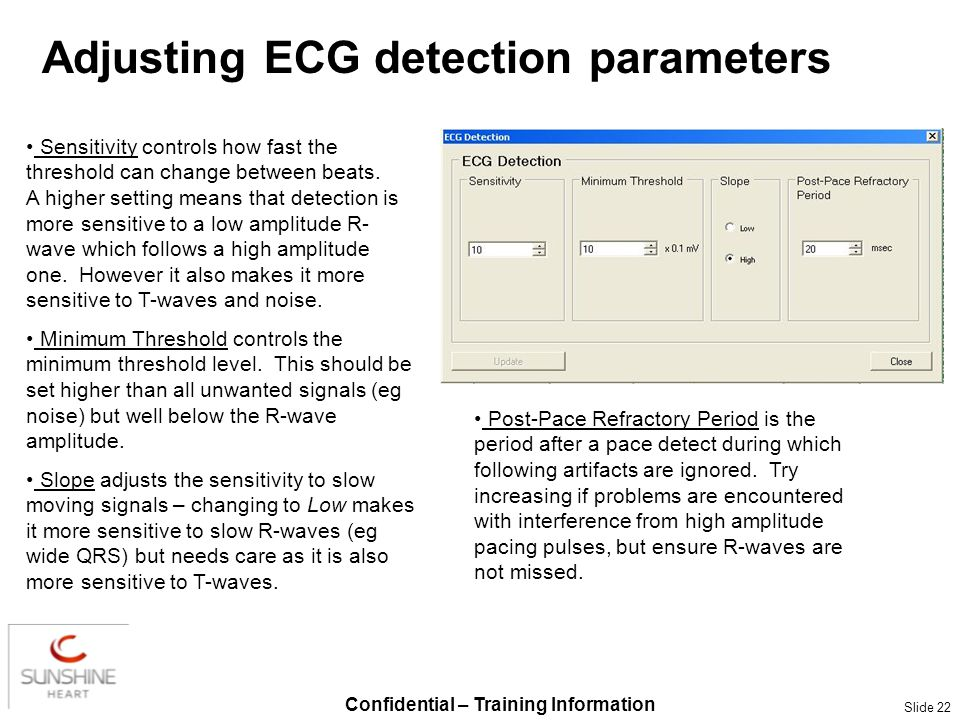 Confidential – Training Information Slide 22 Adjusting ECG detection parameters Sensitivity controls how fast the threshold can change between beats.