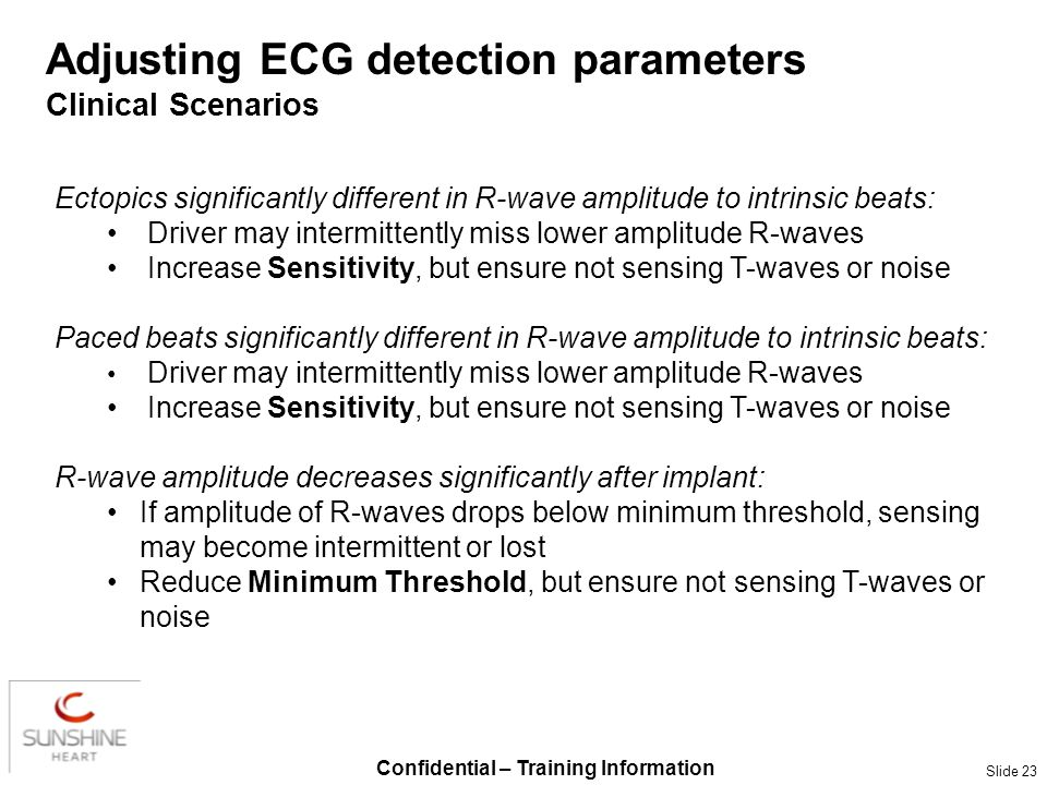 Confidential – Training Information Slide 23 Adjusting ECG detection parameters Clinical Scenarios Ectopics significantly different in R-wave amplitud