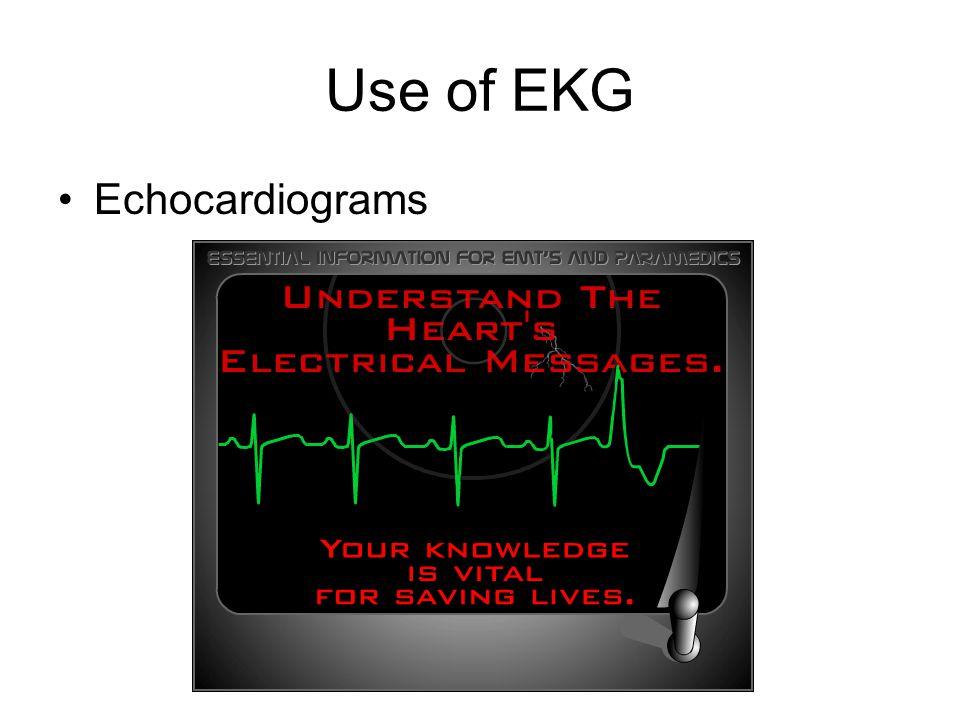 Use of EKG Echocardiograms
