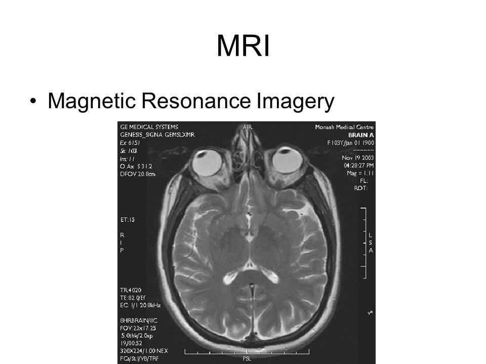 MRI Magnetic Resonance Imagery