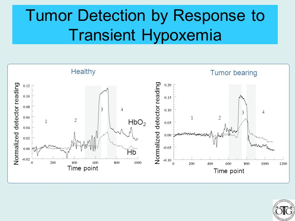 Tumor Detection by Response to Transient Hypoxemia 1 2 34 12 3 4 Time point Normalized detector reading Healthy Tumor bearing HbO 2 Hb