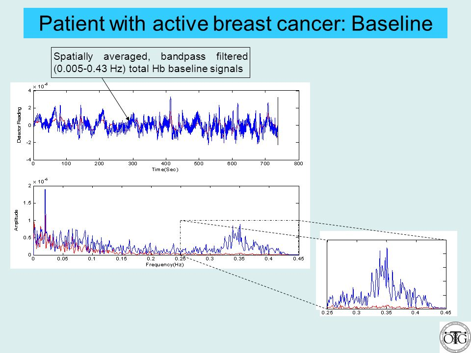 Patient with active breast cancer: Baseline Spatially averaged, bandpass filtered (0.005-0.43 Hz) total Hb baseline signals