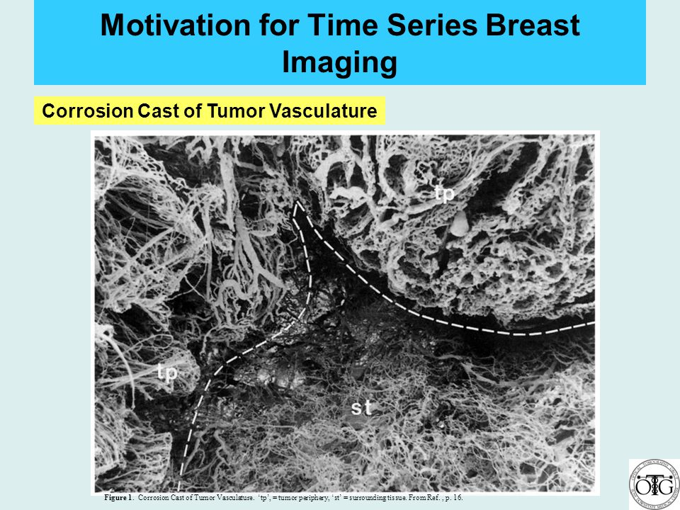 Motivation for Time Series Breast Imaging Figure 1. Corrosion Cast of Tumor Vasculature. tp, = tumor periphery, st = surrounding tissue. From Ref., p.