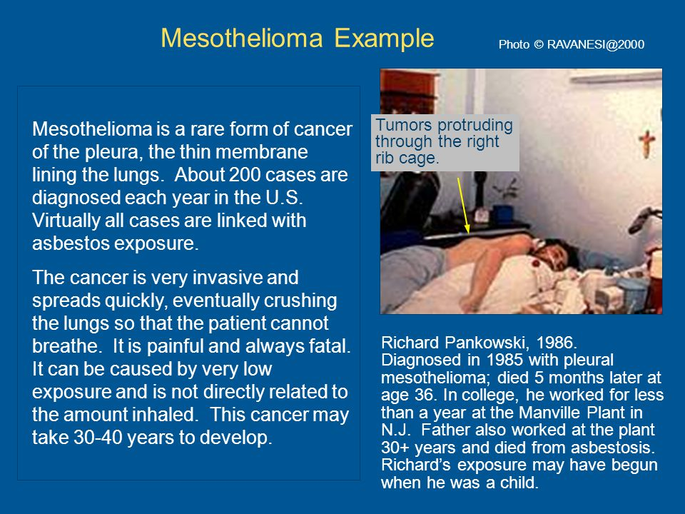 Photo © RAVANESI@2000 Mesothelioma Example Mesothelioma is a rare form of cancer of the pleura, the thin membrane lining the lungs.