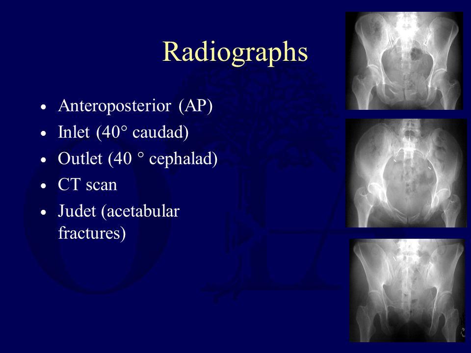 Radiographs Anteroposterior (AP) Inlet (40° caudad) Outlet (40 ° cephalad) CT scan Judet (acetabular fractures)