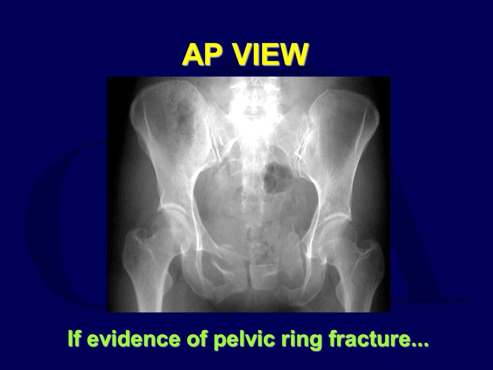 AP VIEW If evidence of pelvic ring fracture...