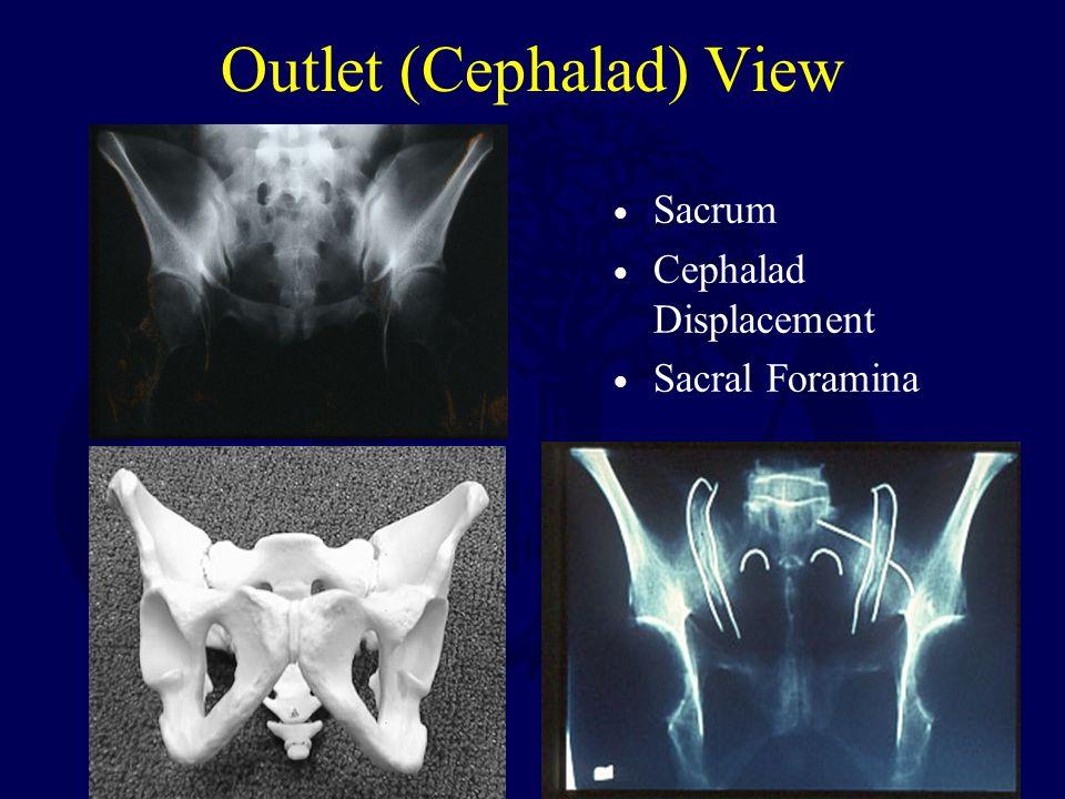 Outlet (Cephalad) View Sacrum Cephalad Displacement Sacral Foramina