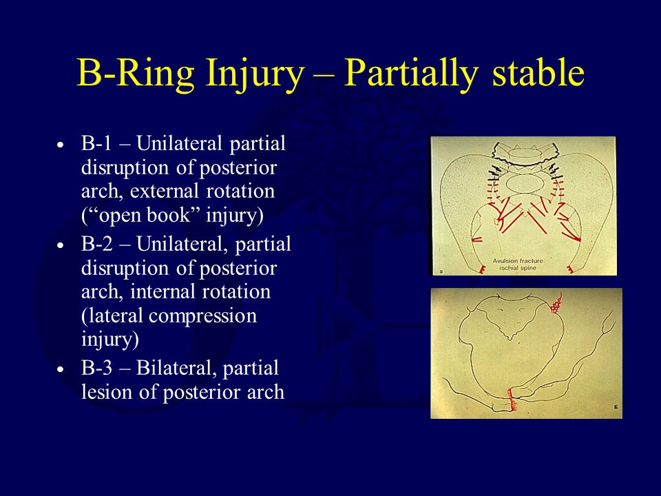 B-Ring Injury – Partially stable B-1 – Unilateral partial disruption of posterior arch, external rotation (open book injury) B-2 – Unilateral, partial disruption of posterior arch, internal rotation (lateral compression injury) B-3 – Bilateral, partial lesion of posterior arch
