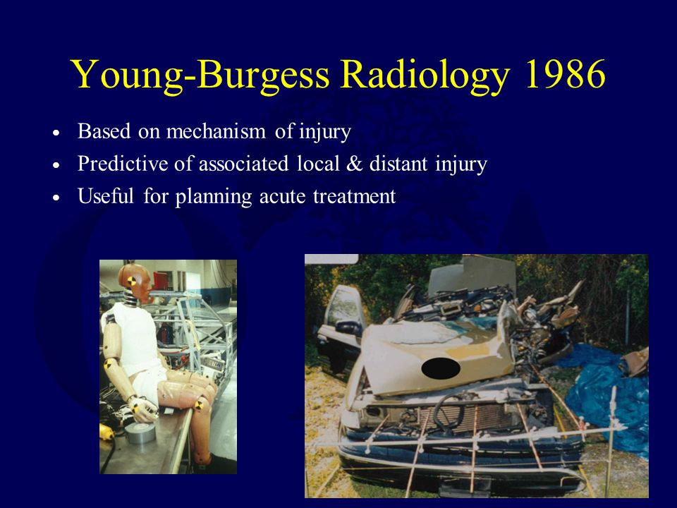 Young-Burgess Radiology 1986 Based on mechanism of injury Predictive of associated local & distant injury Useful for planning acute treatment