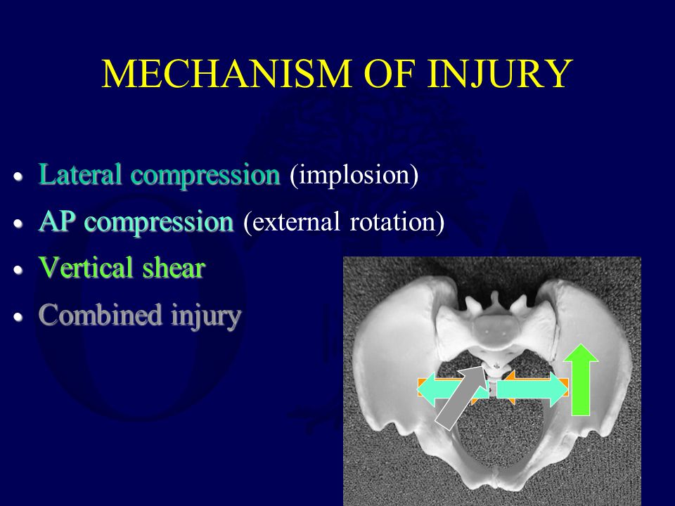 MECHANISM OF INJURY Lateral compression Lateral compression (implosion) AP compression AP compression (external rotation) Vertical shear Vertical shear Combined injury Combined injury