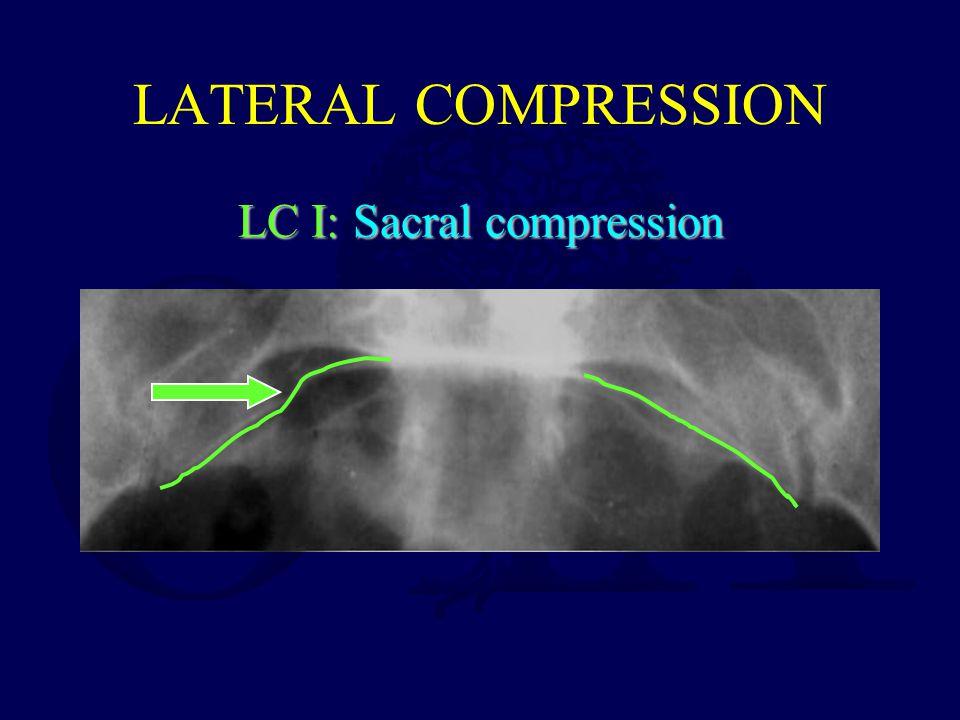 LATERAL COMPRESSION LC I: Sacral compression
