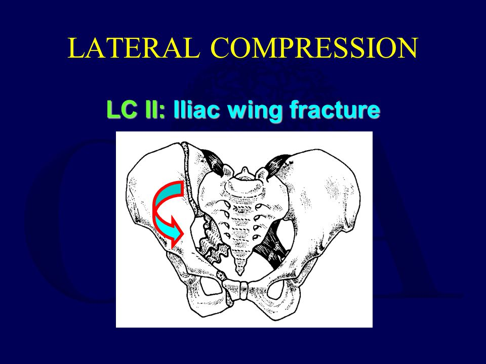 LATERAL COMPRESSION LC II: Iliac wing fracture