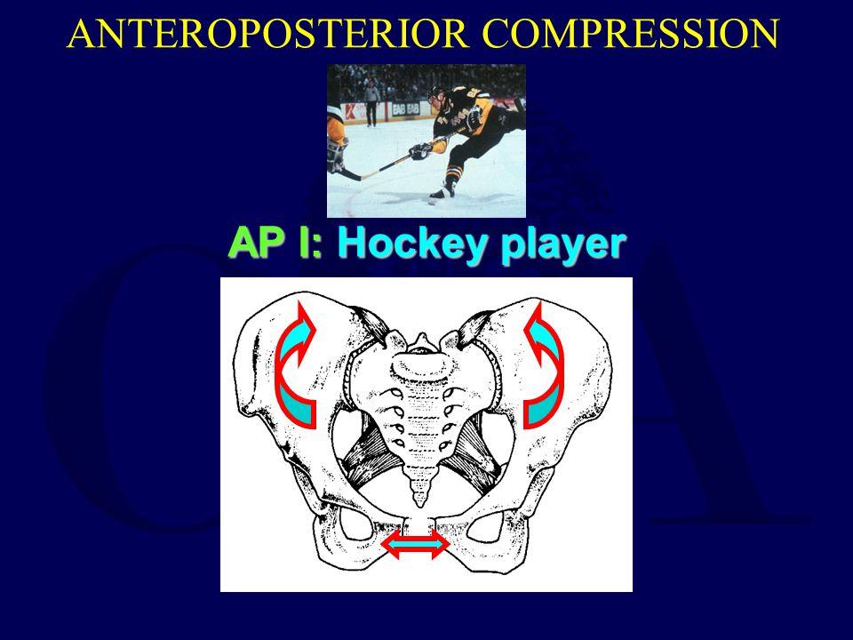 ANTEROPOSTERIOR COMPRESSION AP I: Hockey player