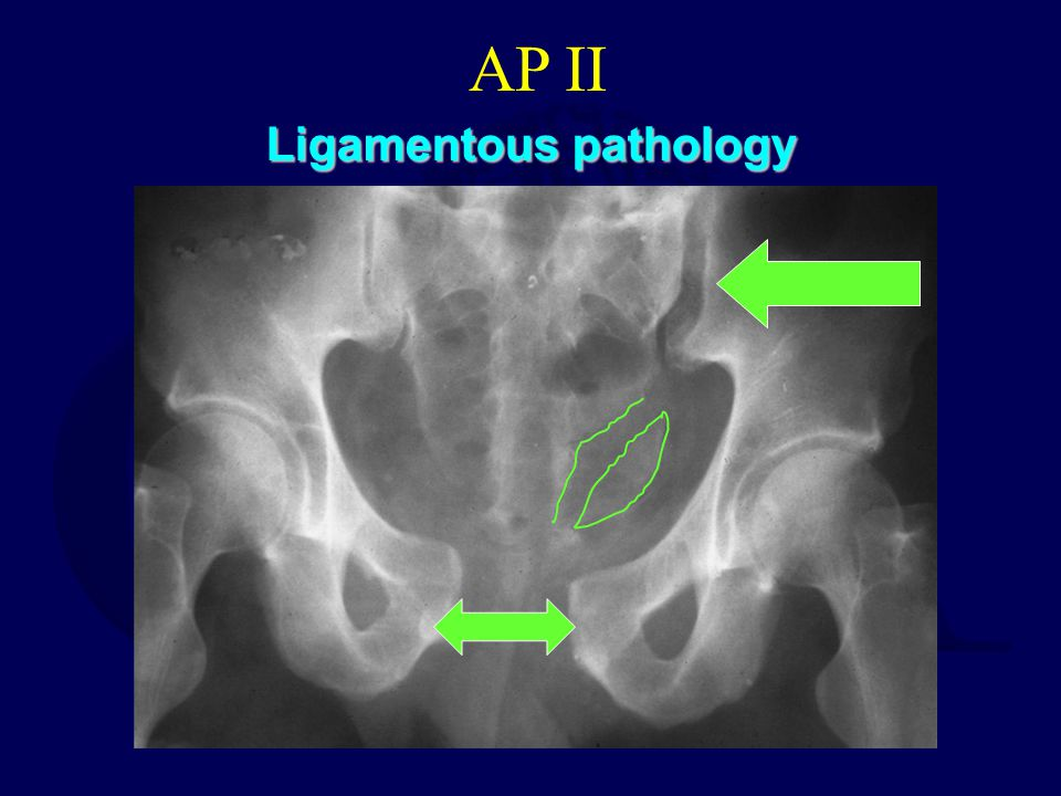 AP II Ligamentous pathology