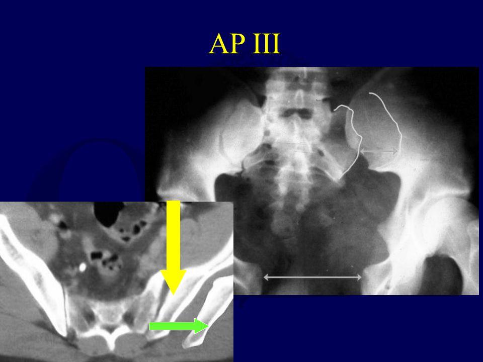 AP III